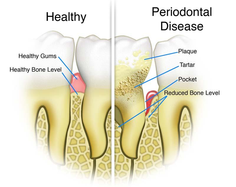 healthy-vs-gum-disease