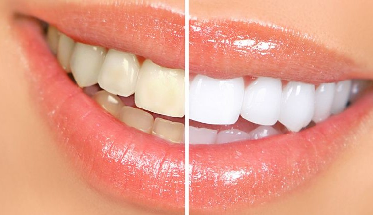 remedies_home_yellow_teeth-759×438