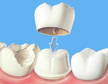 pr-4-protetica – coroana dentara