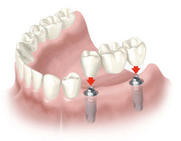pr3-protetică – punte pe implanturi