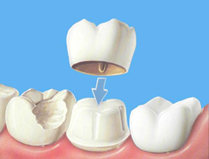 protetica pr – coroana dentara