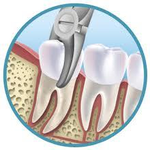 extractie dentara Rident Estetic - Cabinet Stomatologic Sector 2 Bucureşti